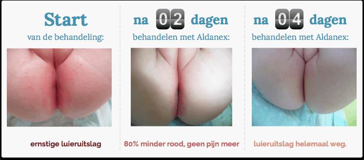 Aldanex-geval-2